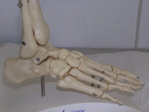 Tarsaltunnelsyndrom orthopaedie orthopaede kalk lindenthal